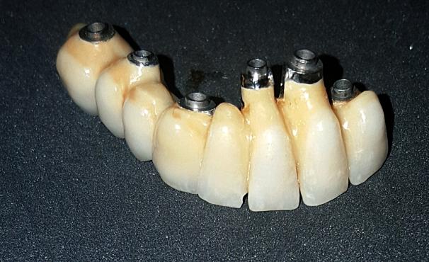 Conformazione della protesi