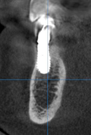Sezione tomografica
